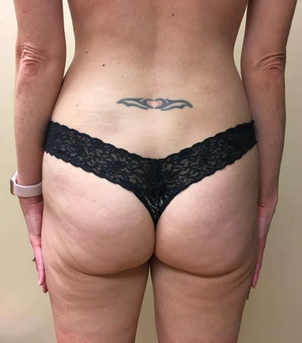 One Month Post-Op